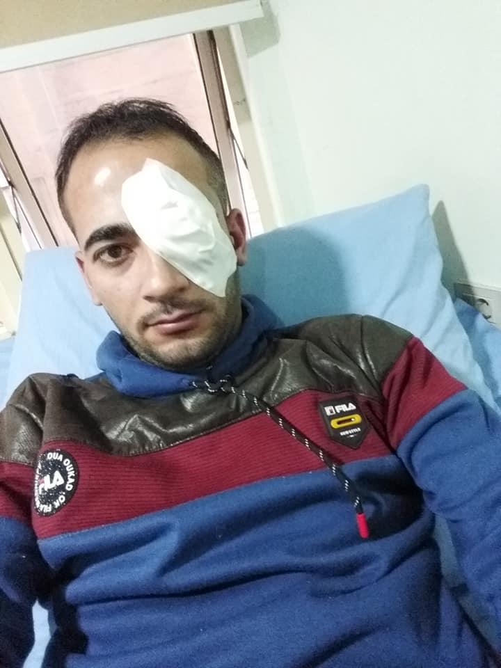 اجراء عملية جراحية بالعين للشاب: نصر الفرا