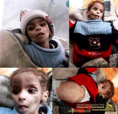 مخيم اليرموك وحكاية نكبة فلسطينية ثانية.. أطفال ومسنون يسقطون جوعا، وشهادات مبكية من داخل المخيم: