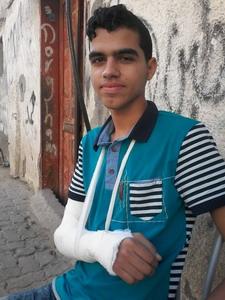 تعرض الشاب : خالد ياسر طاهر الفرا لكسر في يده  اليمنى