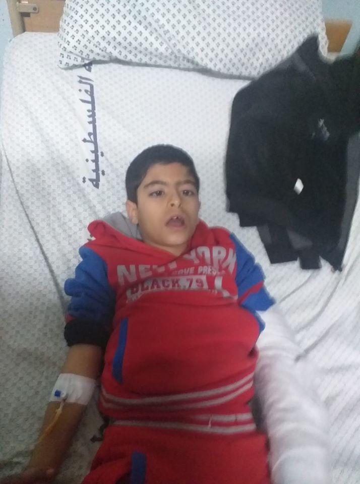 اجراء عملية جراحية للطفل : مصطفى عيسى سليمان الفرا